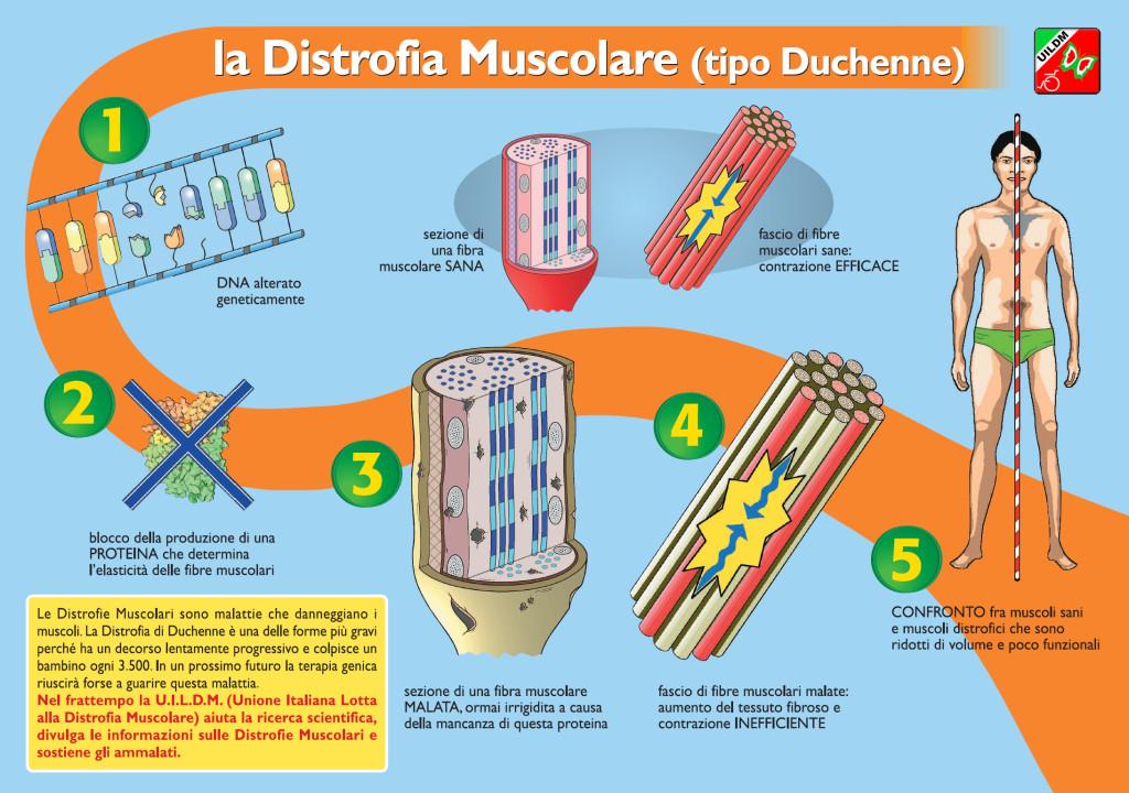 05 La Distrofia - 1